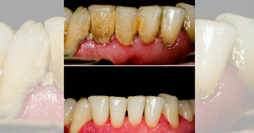 Avec un ingrédient de votre cuisine, vous pourriez réduire votre temps passé dans le fauteuil du dentiste