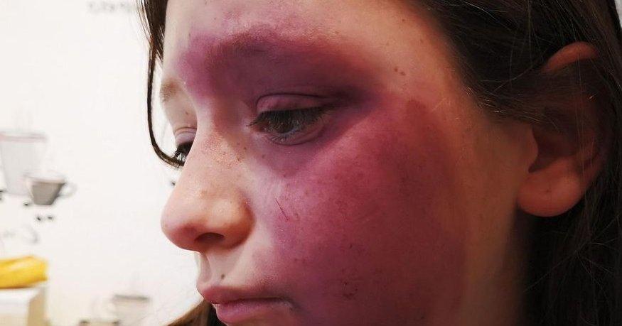 Une jeune fille de 10 ans a été rouée coups par trois élèves plus âgés…