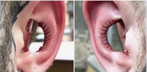 """S'enlever l'intérieur des oreilles, la """"tendance beauté"""" la plus remarquable de 2020"""