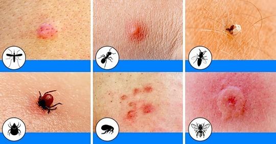 10 morsure et piqures d'insectes communs que tout le monde devrait pouvoir reconnaitre