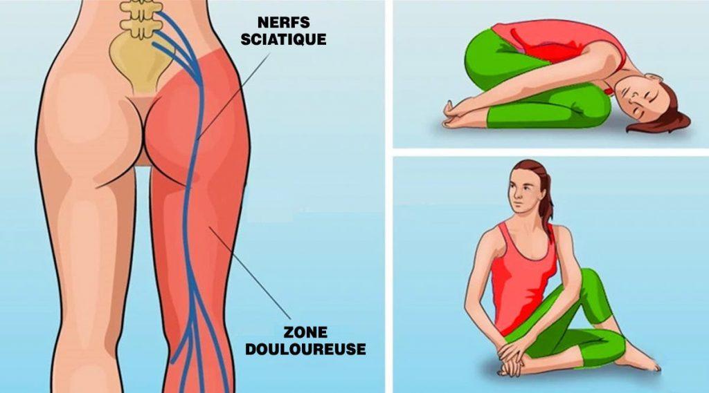 8 positions de yoga qui soulagent la douleur de la sciatique
