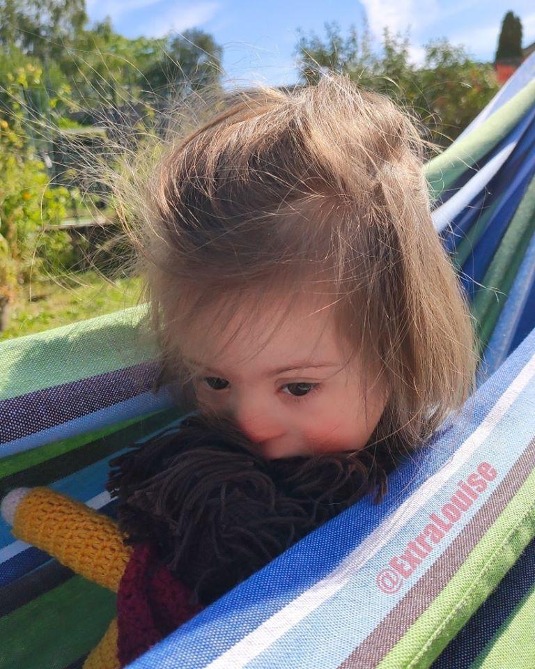 Louise, 5 ans, atteinte de trisomie 21, refusée par le club de vacances d'un camping